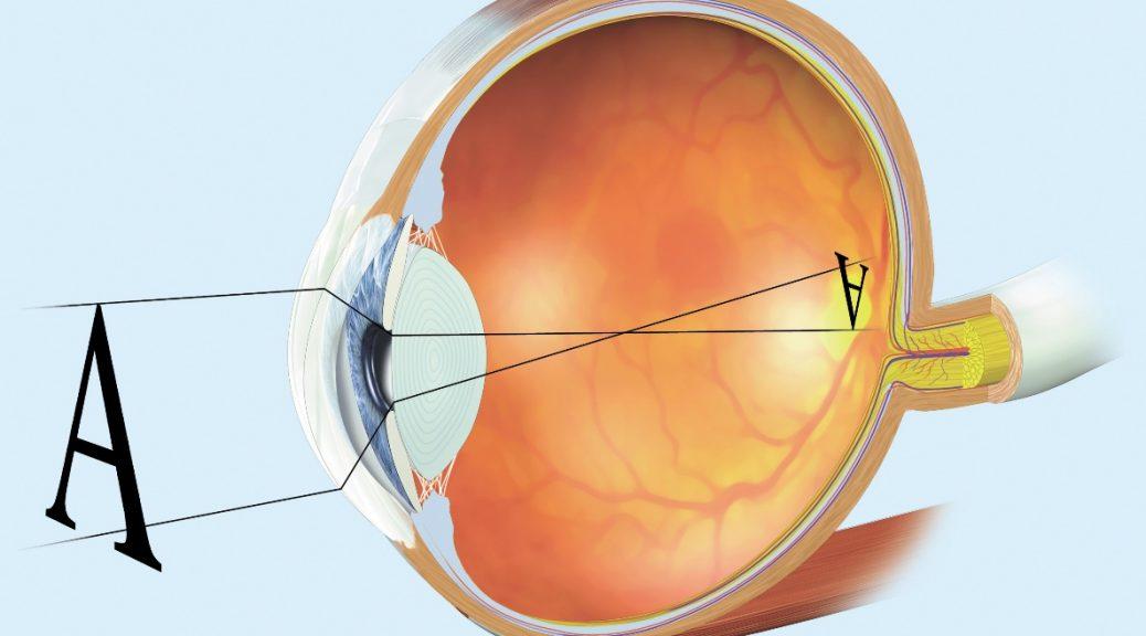 Glaucoma cura